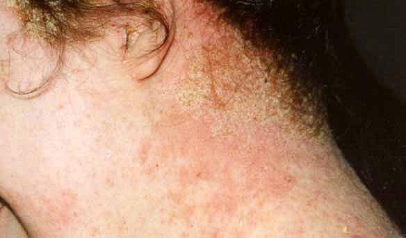 Agopuntura di dermatite di atopic