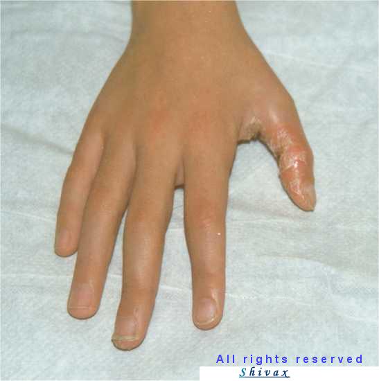 Eczema di fotografia su un gomito